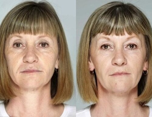 Is non-surgical lifting with hyaluronic fillers and botox effective?