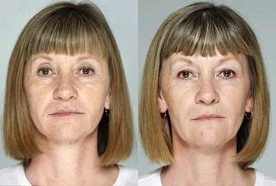 Jane-Shulz-before-after