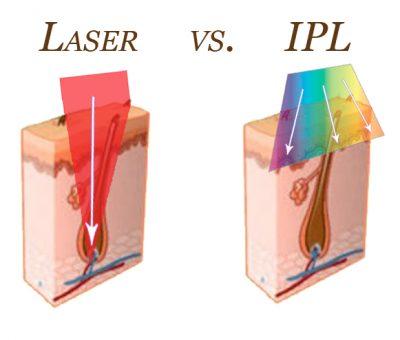 Лазер IPL